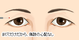 脂肪 取り 瞼 瞼の厚みは本当に脂肪ですか?「瞼の脂肪取り」をすれば厚みは解消されますか?
